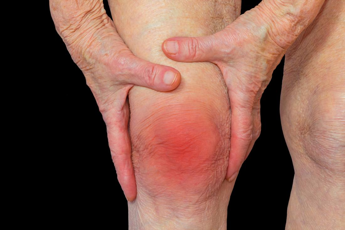 Total Knee Replacement Symptoms Diagnosis And Treatment Of Arthritis