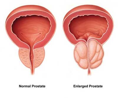 normal vs enlarged prostate