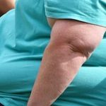 obesity is serious multi health disorder