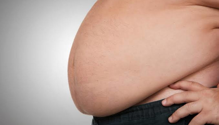 What are the complications associated with obesity