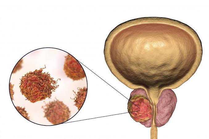 HOW CAN A MAN REDUCE THE RISK OF PROSTATE CANCER?